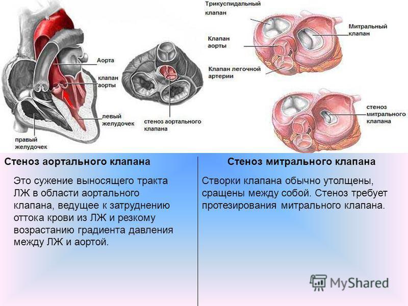 Стеноз аортального клапана Стеноз митрального клапана Это сужение выносящего тракта ЛЖ в области аортального клапана, ведущее к затруднению оттока крови из ЛЖ и резкому возрастанию градиента давления между ЛЖ и аортой. Створки клапана обычно утолщены