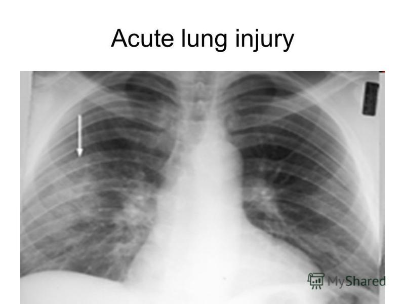 acute lung injury Acute lung injury after cardiac surgery is a common complication the pathophysiology is complex and still not fully elucidate no specific biomarkers are identified and the diagnosis is solely based on impaired oxygenation.