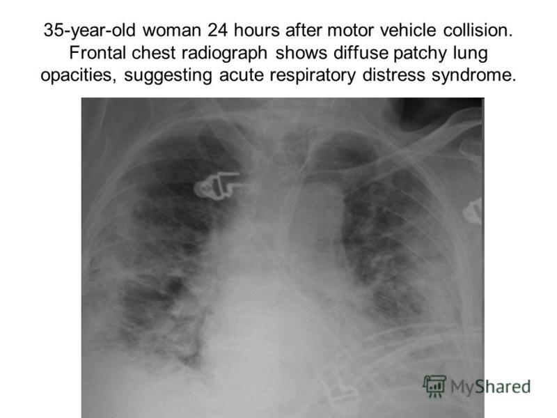 35-year-old woman 24 hours after motor vehicle collision. Frontal chest radiograph shows diffuse patchy lung opacities, suggesting acute respiratory distress syndrome.