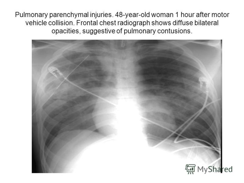 Pulmonary parenchymal injuries. 48-year-old woman 1 hour after motor vehicle collision. Frontal chest radiograph shows diffuse bilateral opacities, suggestive of pulmonary contusions.
