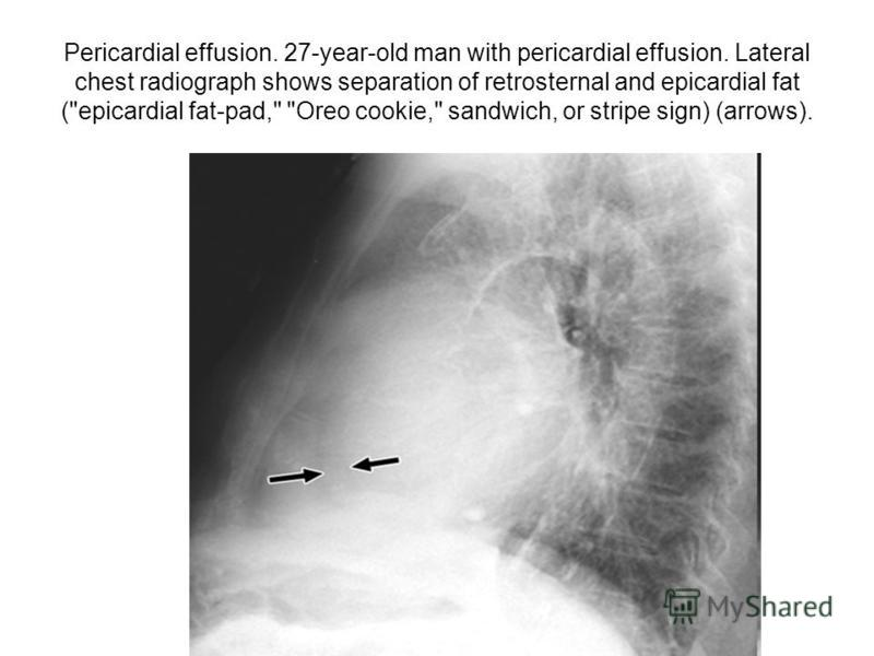 Pericardial effusion. 27-year-old man with pericardial effusion. Lateral chest radiograph shows separation of retrosternal and epicardial fat (epicardial fat-pad, Oreo cookie, sandwich, or stripe sign) (arrows).