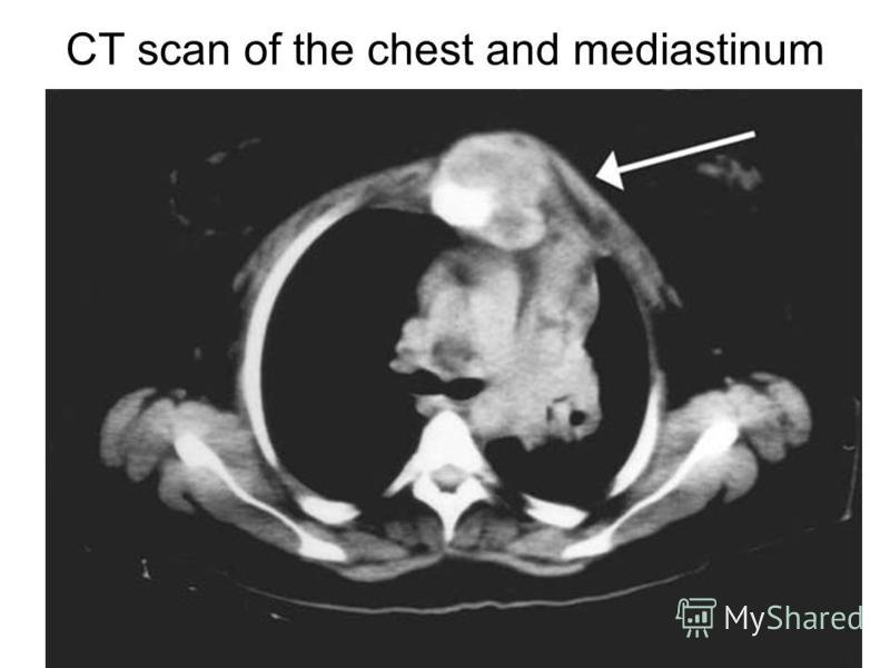 CT scan of the chest and mediastinum