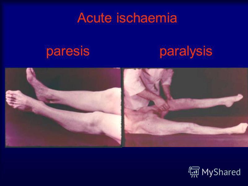Acute ischaemia paresis paralysis