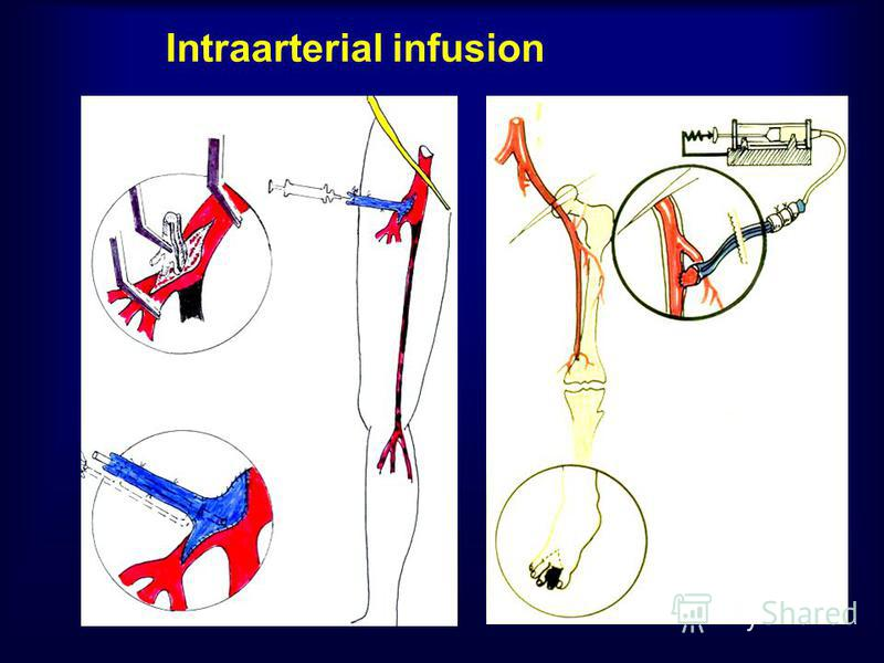 Intraarterial infusion