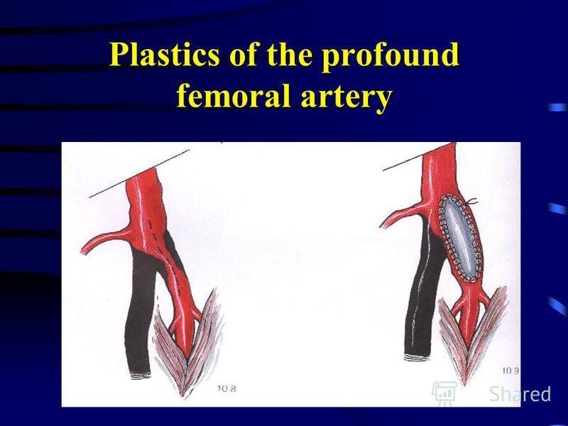 Plastics of the profound femoral artery