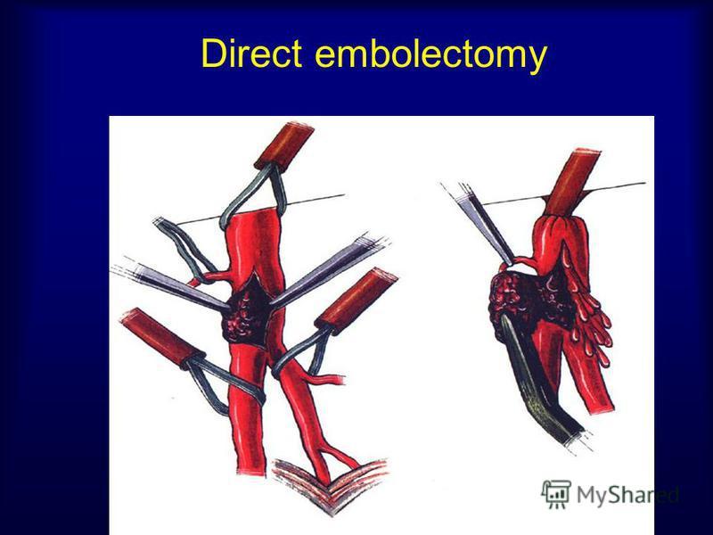 Direct embolectomy