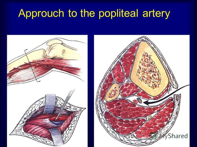 Approuch to the popliteal artery