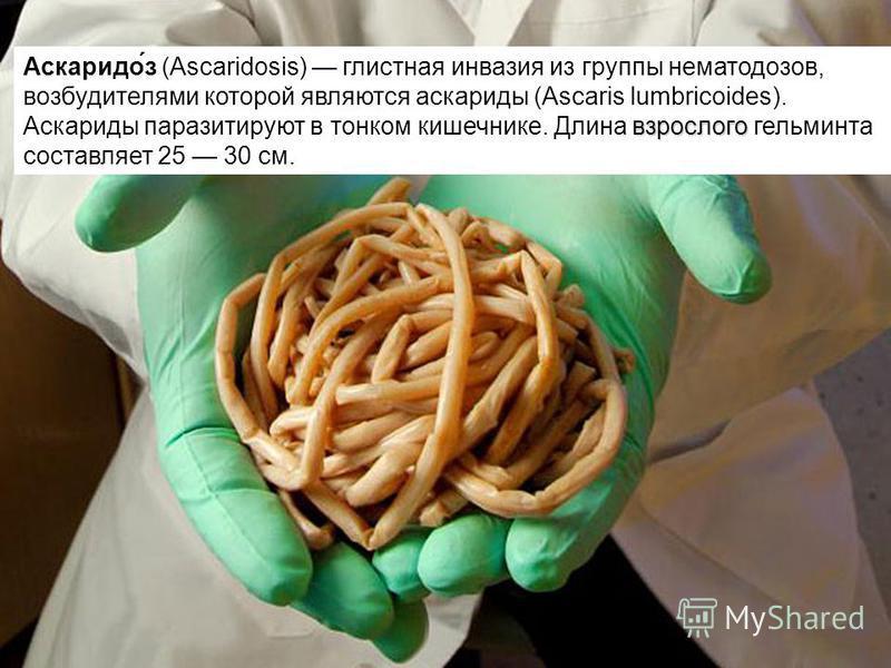 взрослого Аскаридо́з (Ascaridosis) глистная инвазия из группы нематодозов, возбудителями которой являются аскариды (Ascaris lumbricoides). Аскариды паразитируют в тонком кишечнике. Длина взрослого гельминта составляет 25 30 см.