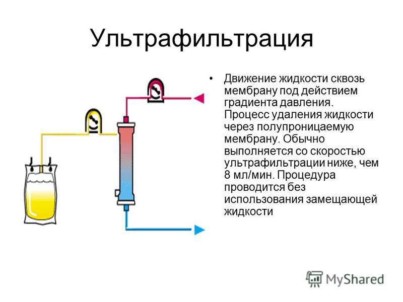 Ультрафильтрация Движение жидкости сквозь мембрану под действием градиента давления. Процесс удаления жидкости через полупроницаемую мембрану. Обычно выполняется со скоростью ультрафильтрации ниже, чем 8 мл/мин. Процедура проводится без использования