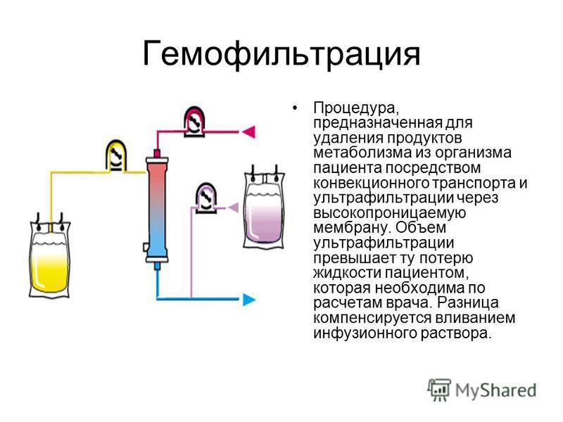 Гемофильтрация Процедура, предназначенная для удаления продуктов метаболизма из организма пациента посредством конвекционного транспорта и ультрафильтрации через высокопроницаемую мембрану. Объем ультрафильтрации превышает ту потерю жидкости пациенто