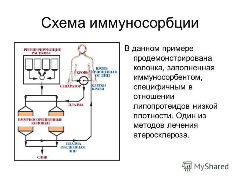 Схема иммуносорбции В данном примере продемонстрирована колонка, заполненная иммуносорбентом, специфичным в отношении липопротеидов низкой плотности. Один из методов лечения атеросклероза.