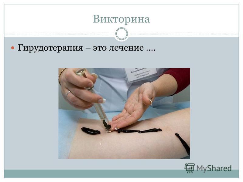 Викторина Гирудотерапия – это лечение ….