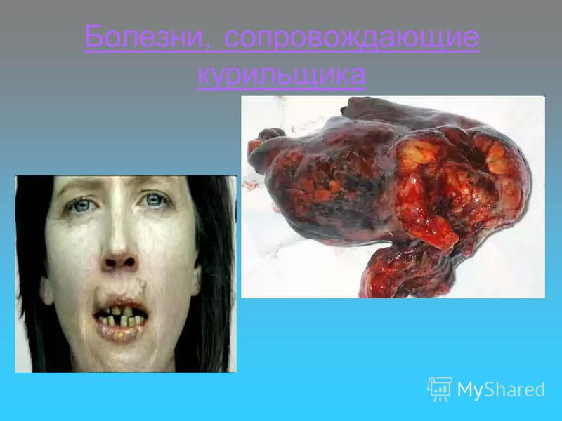 Болезни, сопровождающие курильщика