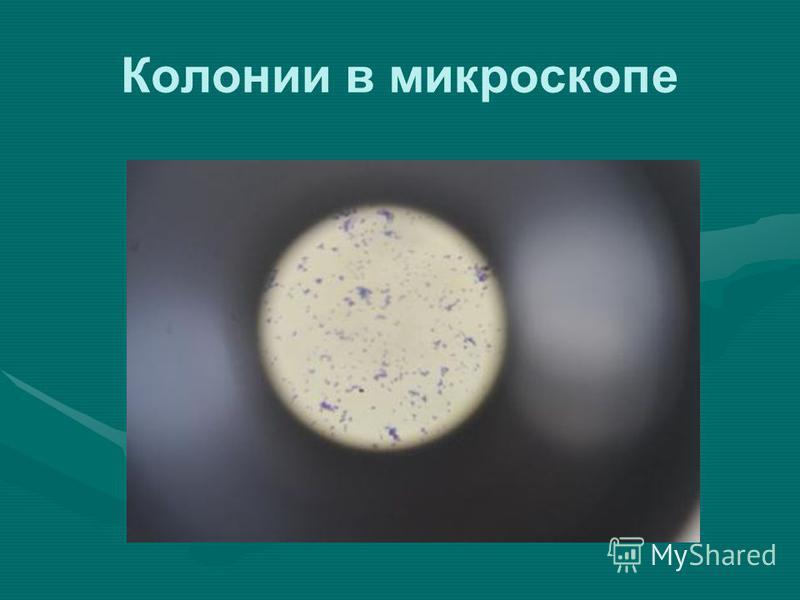 Колонии в микроскопе