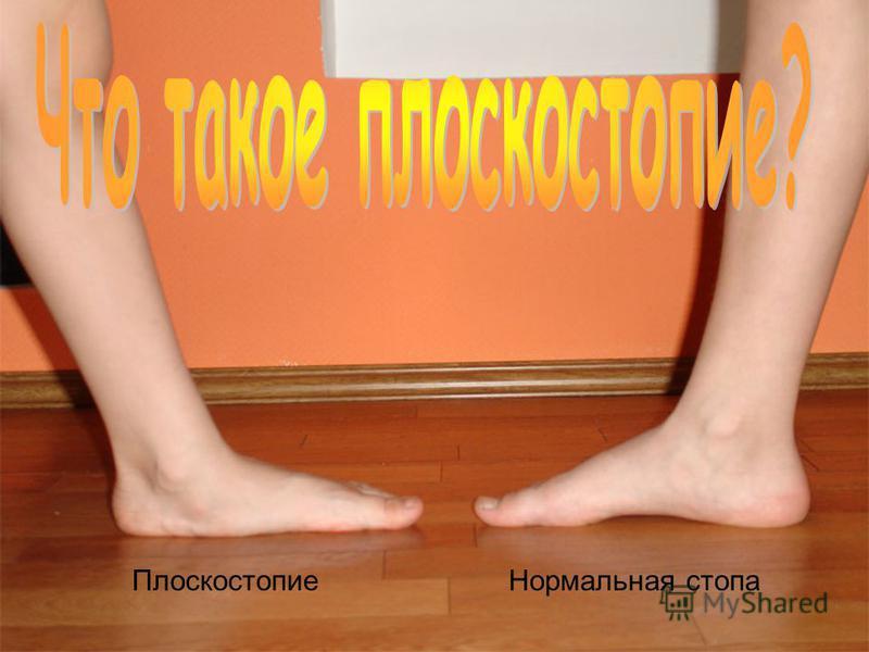 Плоскостопие Нормальная стопа