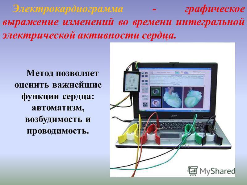 Электрокардиограмма - графическое выражение изменений во времени интегральной электрической активности сердца. Метод позволяет оценить важнейшие функции сердца: автоматизм, возбудимость и проводимость.