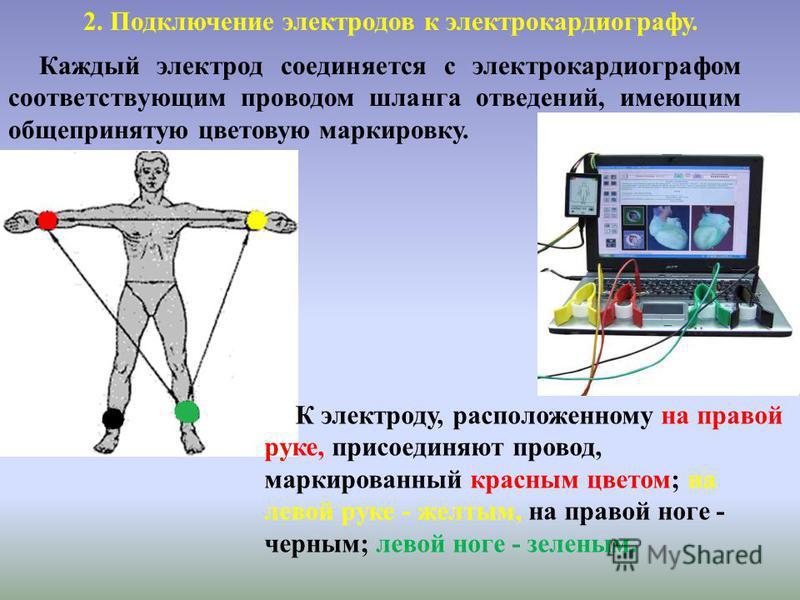 Каждый электрод соединяется с электрокардиографом соответствующим проводом шланга отведений, имеющим общепринятую цветовую маркировку. 2. Подключение электродов к электрокардиографу. К электроду, расположенному на правой руке, присоединяют провод, ма