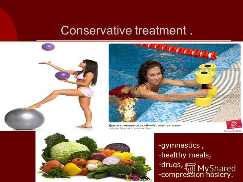 Conservative treatment. -gymnastics, -healthy meals, -drugs, -compression hosiery..