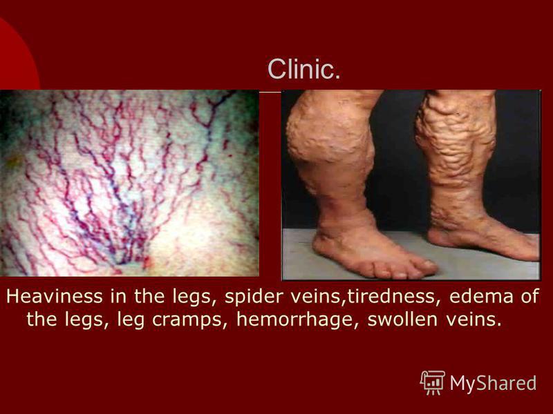 Clinic. Heaviness in the legs, spider veins,tiredness, edema of the legs, leg cramps, hemorrhage, swollen veins.