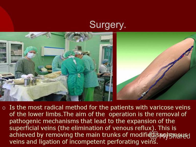 Surgery. Is the most radical method for the patients with varicose veins of the lower limbs.The aim of the operation is the removal of pathogenic mechanisms that lead to the expansion of the superficial veins (the elimination of venous reflux). This