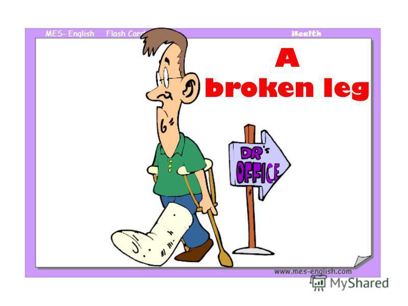 A broken leg