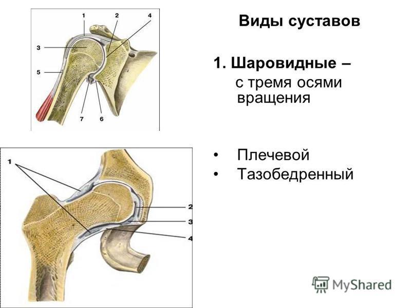 Виды суставов 1. Шаровидные – с тремя осями вращения Плечевой Тазобедренный