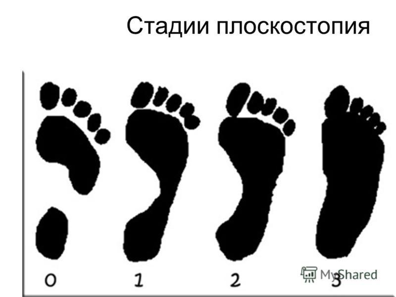 Стадии плоскостопия