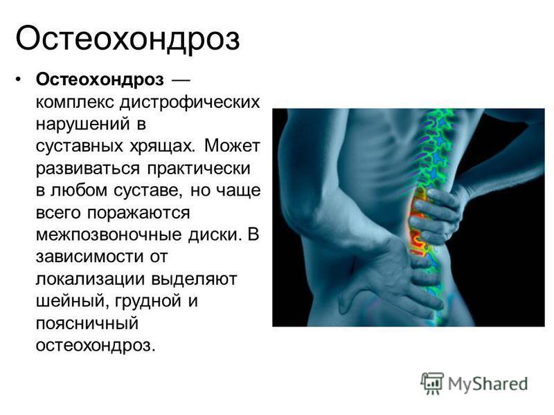 Остеохондроз Остеохондроз комплекс дистрофических нарушений в суставных хрящах. Может развиваться практически в любом суставе, но чаще всего поражаются межпозвоночные диски. В зависимости от локализации выделяют шейный, грудной и поясничный остеохонд