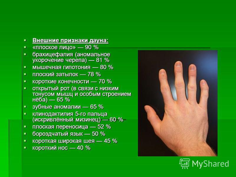 Внешние признаки дауна: Внешние признаки дауна: «плоское лицо» 90 % «плоское лицо» 90 % брахицефалия (аномальное укорочение черепа) 81 % брахицефалия (аномальное укорочение черепа) 81 % мышечная гипотония 80 % мышечная гипотония 80 % плоский затылок