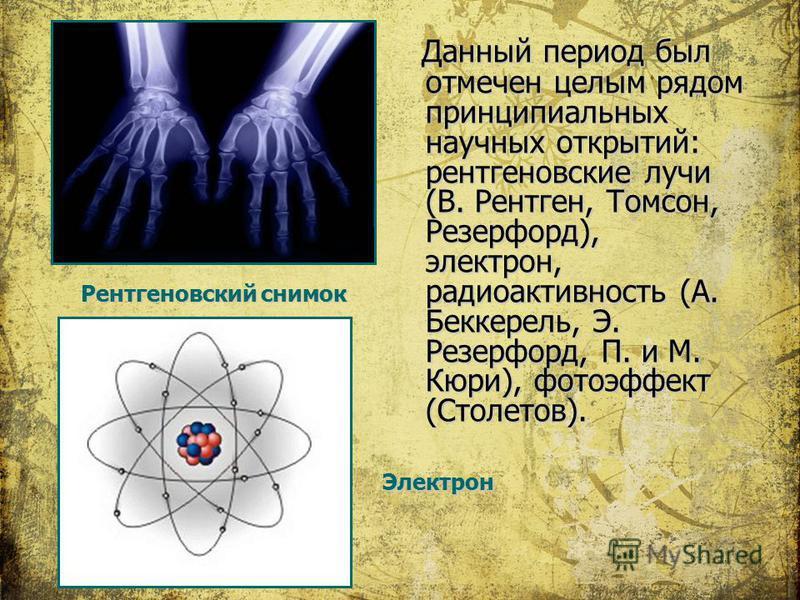 Данный период был отмечен целым рядом принципиальных научных открытий: рентгеновские лучи (В. Рентген, Томсон, Резерфорд), электрон, радиоактивность (А. Беккерель, Э. Резерфорд, П. и М. Кюри), фотоэффект (Столетов). Рентгеновский снимок Электрон
