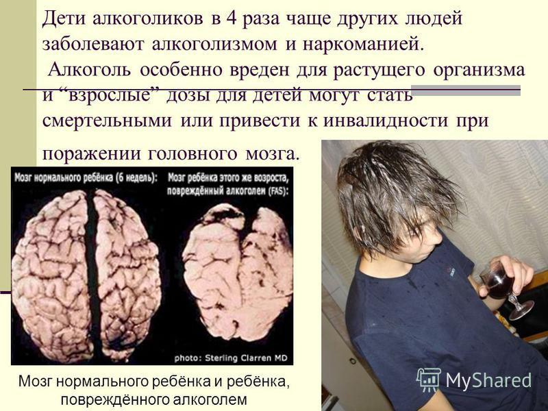 Дети алкоголиков в 4 раза чаще других людей заболевают алкоголизмом и наркоманией. Алкоголь особенно вреден для растущего организма и взрослые дозы для детей могут стать смертельными или привести к инвалидности при поражении головного мозга. Мозг нор