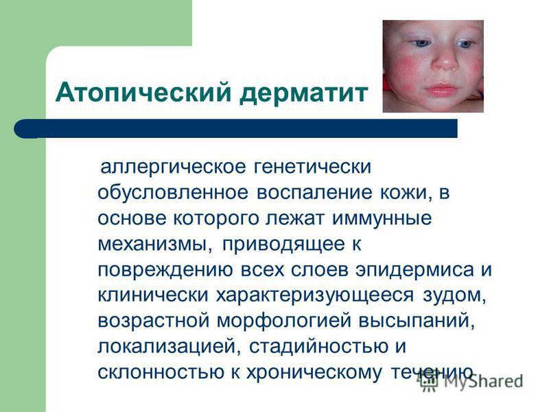 Атопический дерматит аллергическое генетически обусловленное воспаление кожи, в основе которого лежат иммунные механизмы, приводящее к повреждению всех слоев эпидермиса и клинически характеризующееся зудом, возрастной морфологией высыпаний, локализац