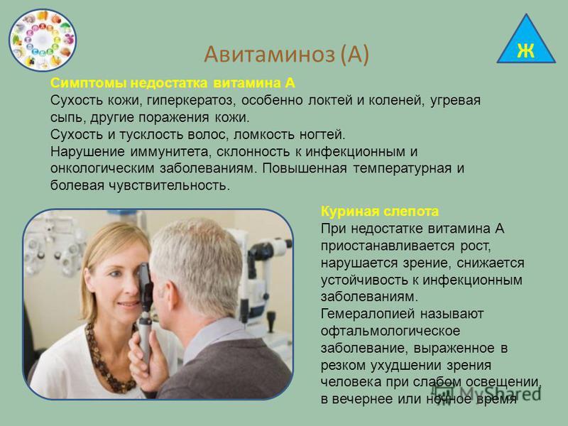 Авитаминоз (А) Симптомы недостатка витамина А Сухость кожи, гиперкератоз, особенно локтей и коленей, угревая сыпь, другие поражения кожи. Сухость и тусклость волос, ломкость ногтей. Нарушение иммунитета, склонность к инфекционным и онкологическим заб