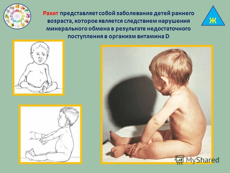Ж Рахит представляет собой заболевание детей раннего возраста, которое является следствием нарушения минерального обмена в результате недостаточного поступления в организм витамина D