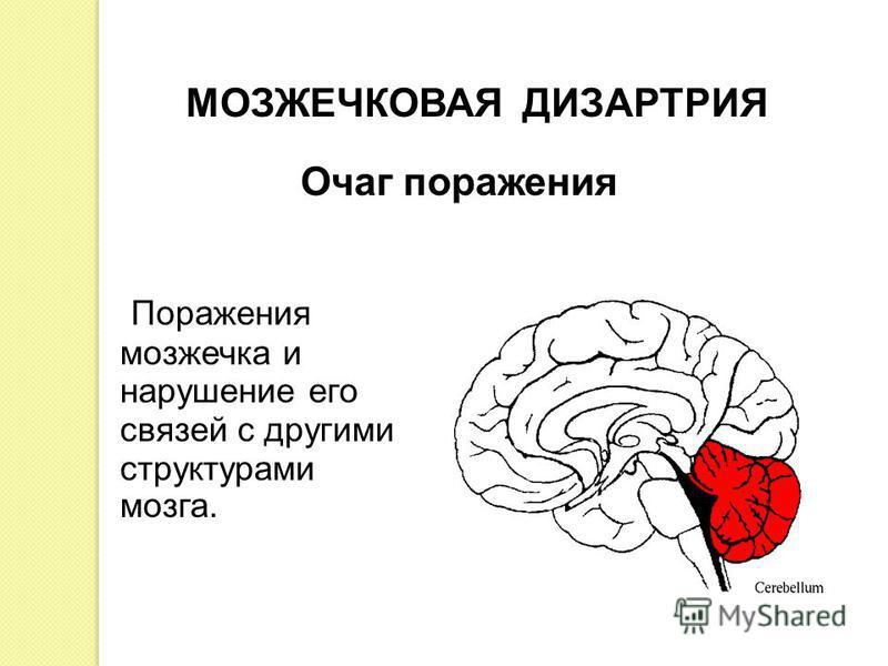 Поражения мозжечка и нарушение его связей с другими структурами мозга. МОЗЖЕЧКОВАЯ ДИЗАРТРИЯ Очаг поражения
