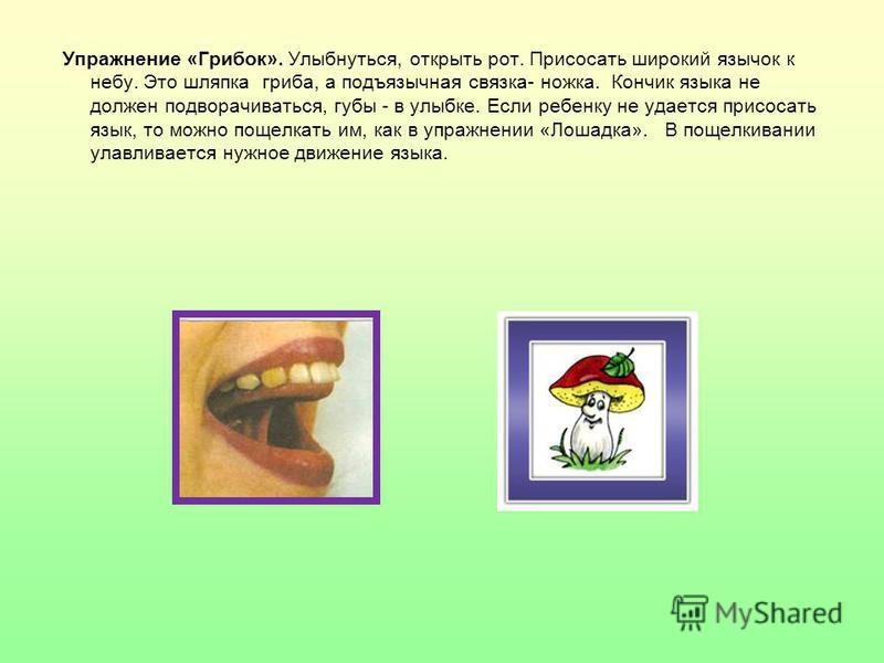Упражнение «Грибок». Улыбнуться, открыть рот. Присосать широкий язычок к небу. Это шляпка гриба, а подъязычная связка- ножка. Кончик языка не должен подворачиваться, губы - в улыбке. Если ребенку не удается присосать язык, то можно пощелкать им, как