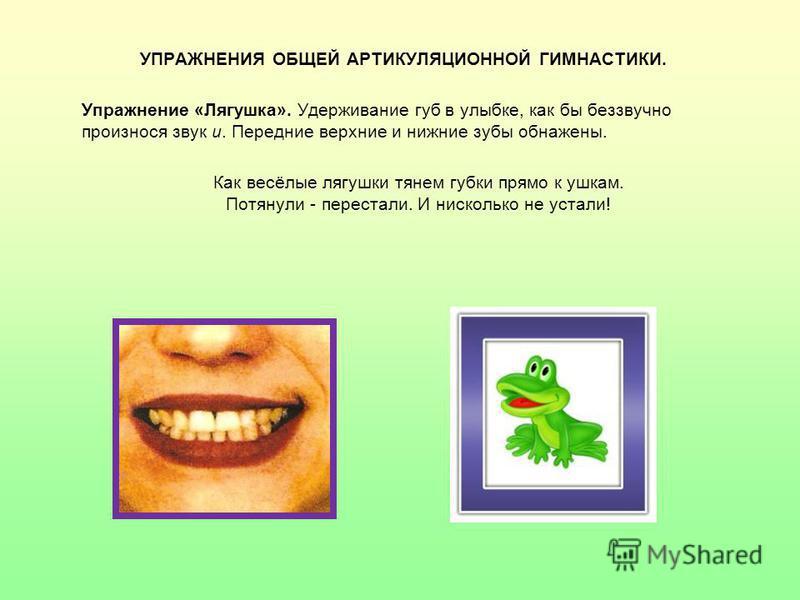 УПРАЖНЕНИЯ ОБЩЕЙ АРТИКУЛЯЦИОННОЙ ГИМНАСТИКИ. Упражнение «Лягушка». Удерживание губ в улыбке, как бы беззвучно произнося звук и. Передние верхние и нижние зубы обнажены. Как весёлые лягушки тянем губки прямо к ушкам. Потянули - перестали. И нисколько