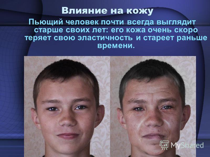 Влияние на кожу Пьющий человек почти всегда выглядит старше своих лет: его кожа очень скоро теряет свою эластичность и стареет раньше времени.