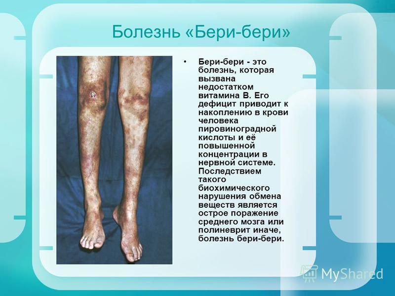 Болезнь «Бери-бери» Бери-бери - это болезнь, которая вызвана недостатком витамина В. Его дефицит приводит к накоплению в крови человека пировиноградной кислоты и её повышенной концентрации в нервной системе. Последствием такого биохимического нарушен