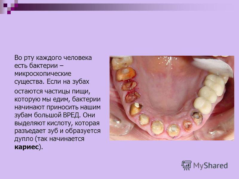 Во рту каждого человека есть бактерии – микроскопические существа. Если на зубах остаются частицы пищи, которую мы едим, бактерии начинают приносить нашим зубам большой ВРЕД. Они выделяют кислоту, которая разъедает зуб и образуется дупло (так начинае
