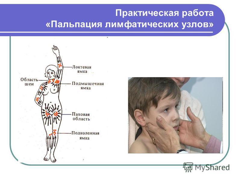 Практическая работа «Пальпация лимфатических узлов»