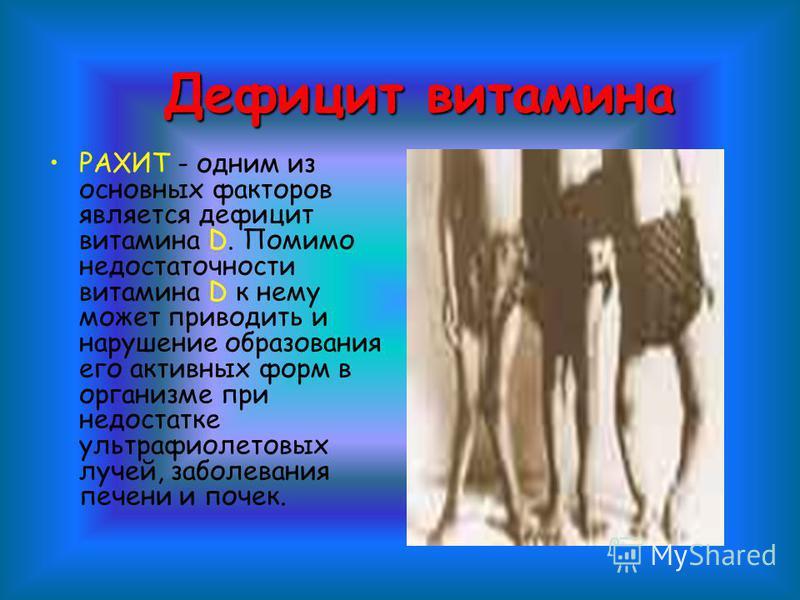 РАХИТ - одним из основных факторов является дефицит витамина D. Помимо недостаточности витамина D к нему может приводить и нарушение образования его активных форм в организме при недостатке ультрафиолетовых лучей, заболевания печени и почек. Дефицит