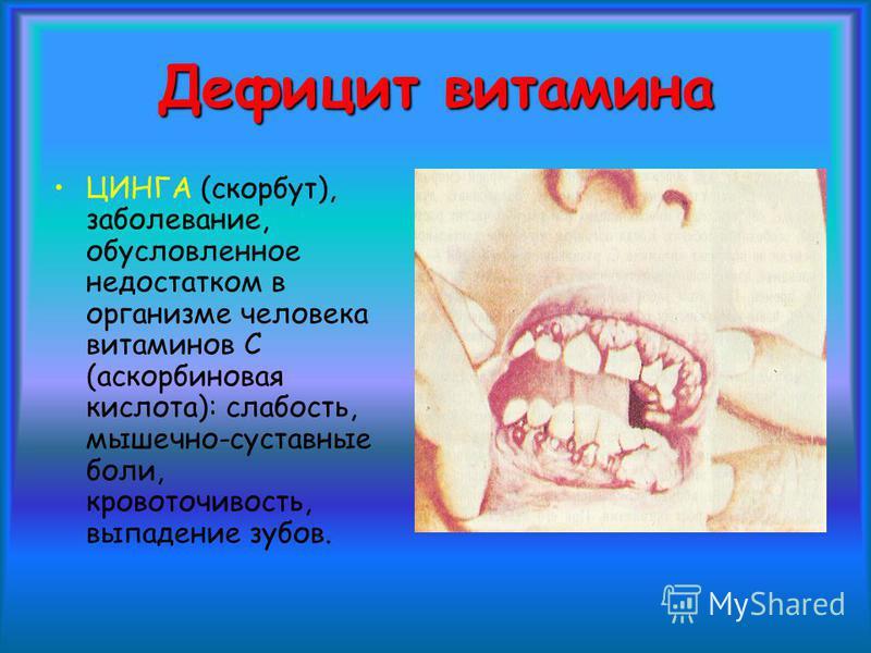 ЦИНГА (скорбут), заболевание, обусловленное недостатком в организме человека витаминов С (аскорбиновая кислота): слабость, мышечно-суставные боли, кровоточивость, выпадение зубов. Дефицит витамина