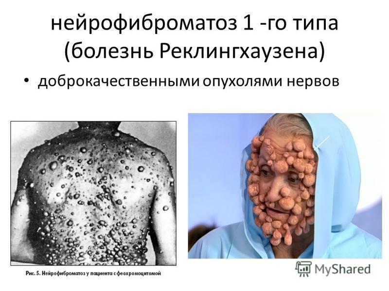 нейрофиброматоз 1 -го типа (болезнь Реклингхаузена) доброкачественными опухолями нервов