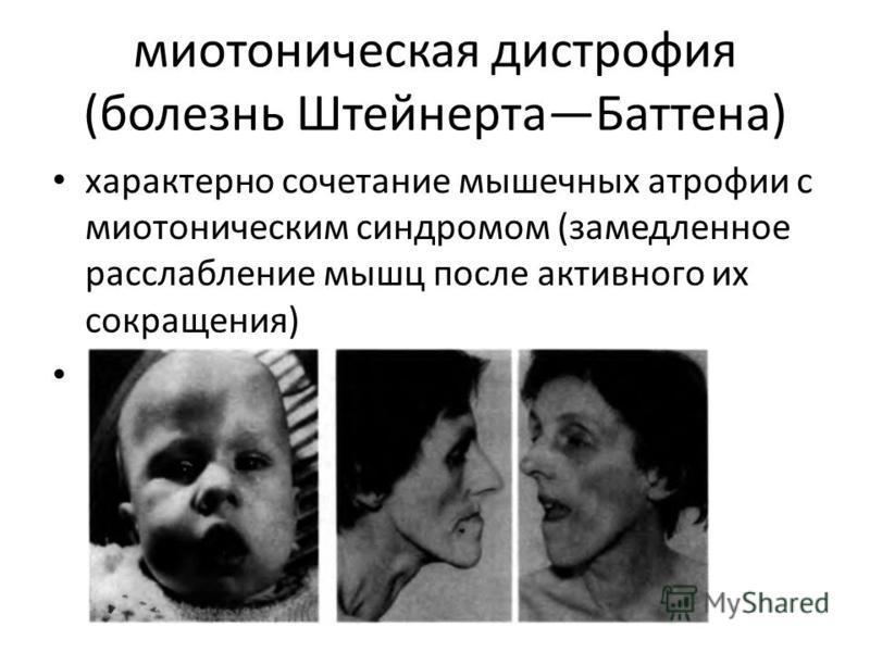 Дистрофия Миотоническая фото