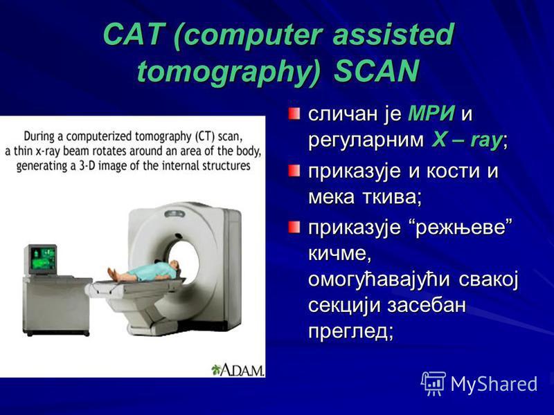 CAT (computer assisted tomography) SCAN сличан је МРИ и регуларним X – ray; приказује и кости и мека ткива; приказује режњеве кичме, омогућавајући свакој секцији засебан преглед;