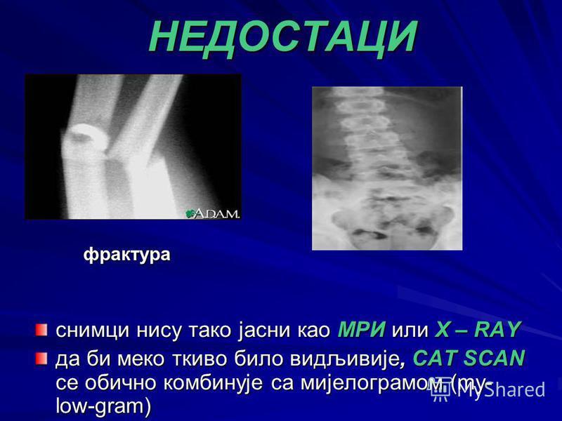 НЕДОСТАЦИ снимци нису тако јасни као МРИ или X – RAY да би меко ткиво било видљивије, CAT SCAN се обично комбинује са мијелограмом (my- low-gram) фрактура