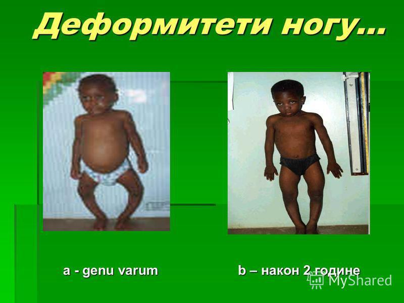 Деформитети ногу... a - genu varum b – након 2 године