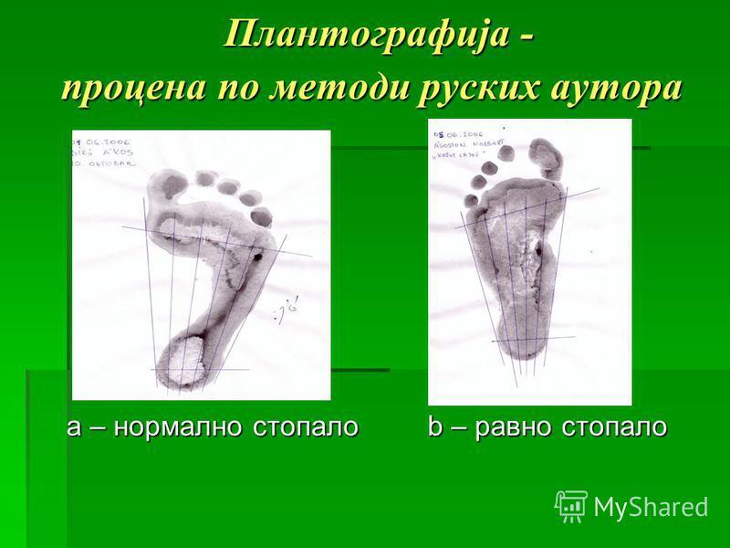 Плантографија - процена по методи руских аутора Плантографија - процена по методи руских аутора a – нормално стопало b – равно стопало