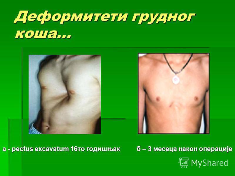 Деформитети грудног коша... a - pectus excavatum 16то годишњак б – 3 месеца након операције